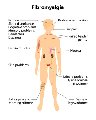 THE DIFFICULTIES IN DIAGNOSING AND TREATING FIBROMYALGIA