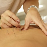 Acupuncture Single treatment - 60 minutes