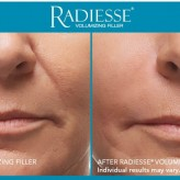 Naso-labial folds - Dermal Fillers
