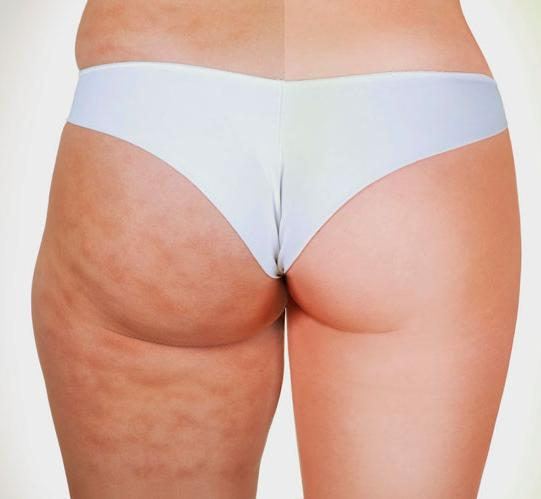 How to get rid of fat on the inner thighs?