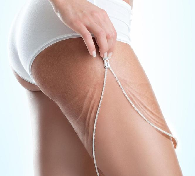 Effective methods of dealing with cellulite