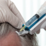 Mesotherapy for Hair loss - six sessions