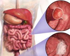 How to check the intestines for oncology without colonoscopy?
