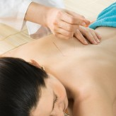 Acupuncture - course of 8 treatments