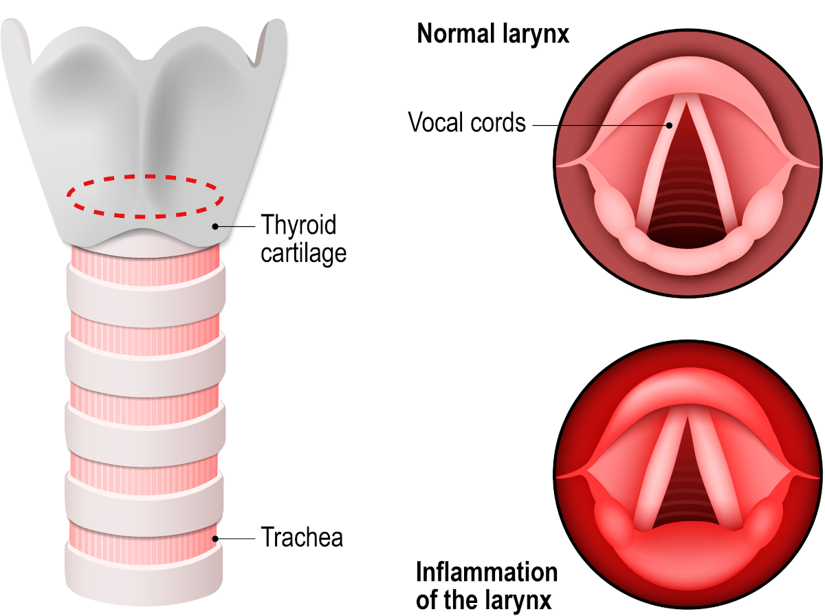 Laryngitis is an inflammation of the larynx mucosa