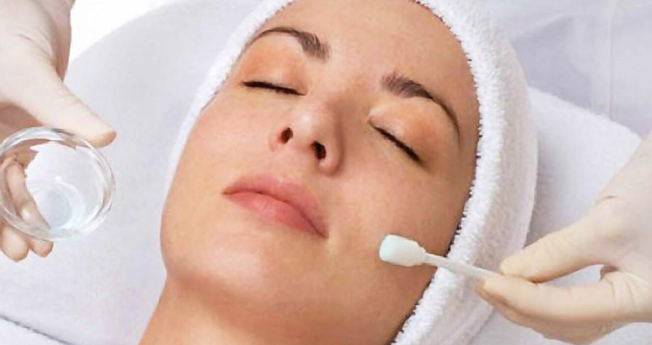 Chemical Peeling or The Dermalogica skin treatment