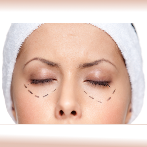 Polydioxanone Threads Lift for Eye Bags