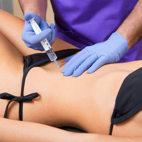 Mesotherapy for cellulite and fat reduction - lipolysis