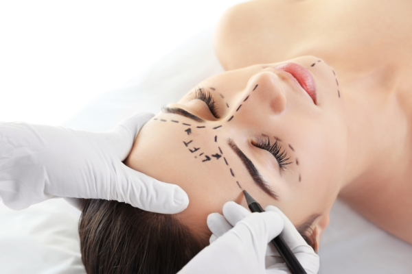 PDO Beauty Threads Lift - Forehead Lines