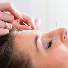 Acupuncture is generally safe when done by an appropriately trained practitioner