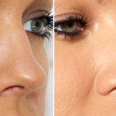 Bunny, smoker's lines treatment with Botulinum Toxin lasts thirty minutes.