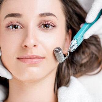 Three sessions of Micro-Needling for Face, Neck and Decollete - three sessions with Dermal Roller SR
