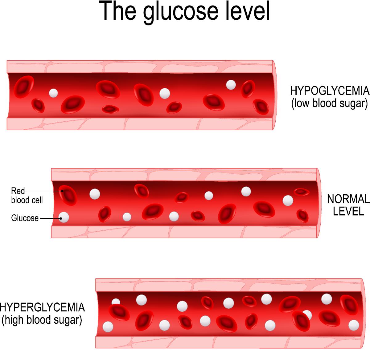 Hypoglycaemia is low blood sugar