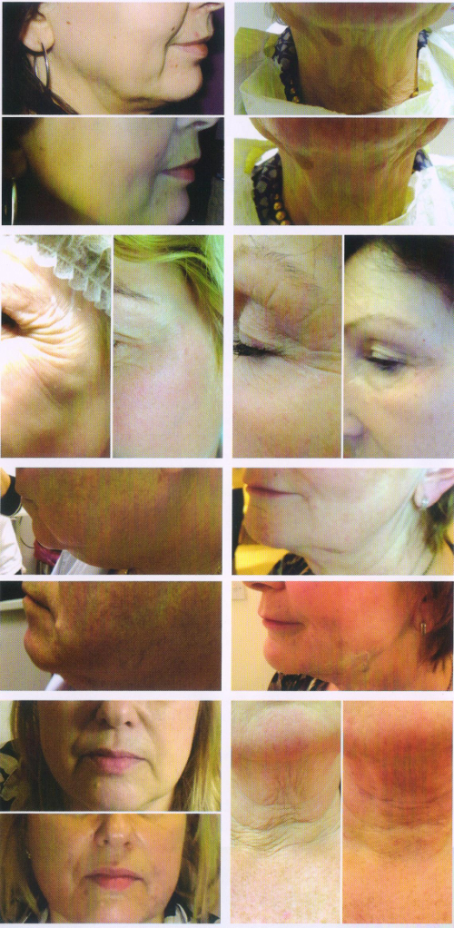 Pictures of faces before and after polydioxanone treatment
