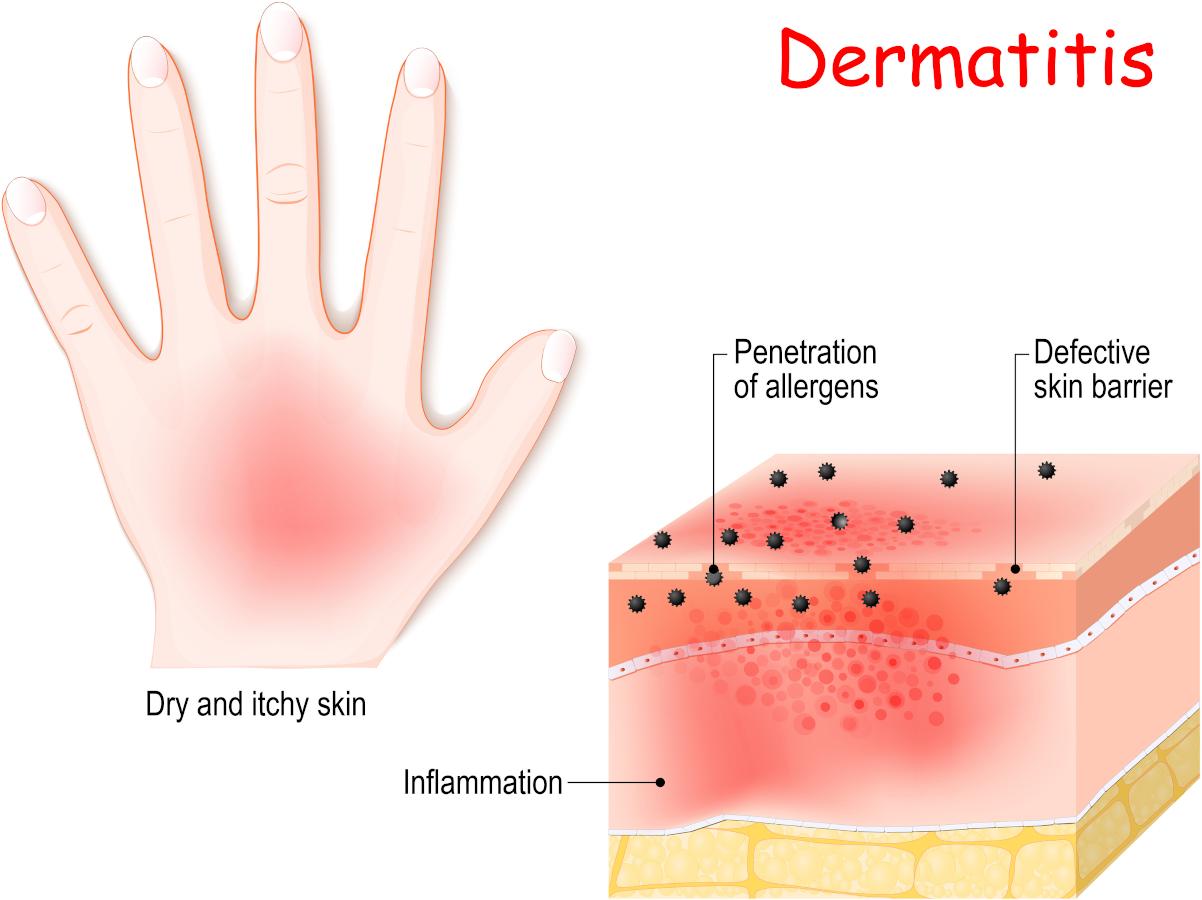 Atopic dermatitis - eczema