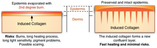 MICRONEEDLE THERAPY