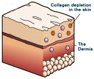regenerate and repair the skin, working below the surface in the dermis