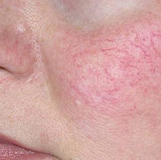 Facial thread veins removal (elecrolysis/diathermy)