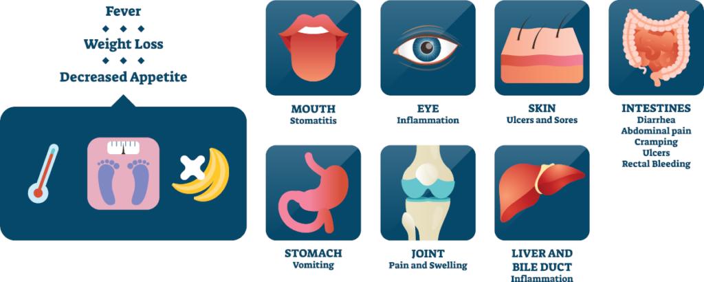 Pathology - Crohn's disease